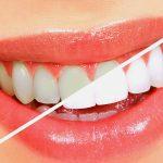 洗牙(每年兩次)